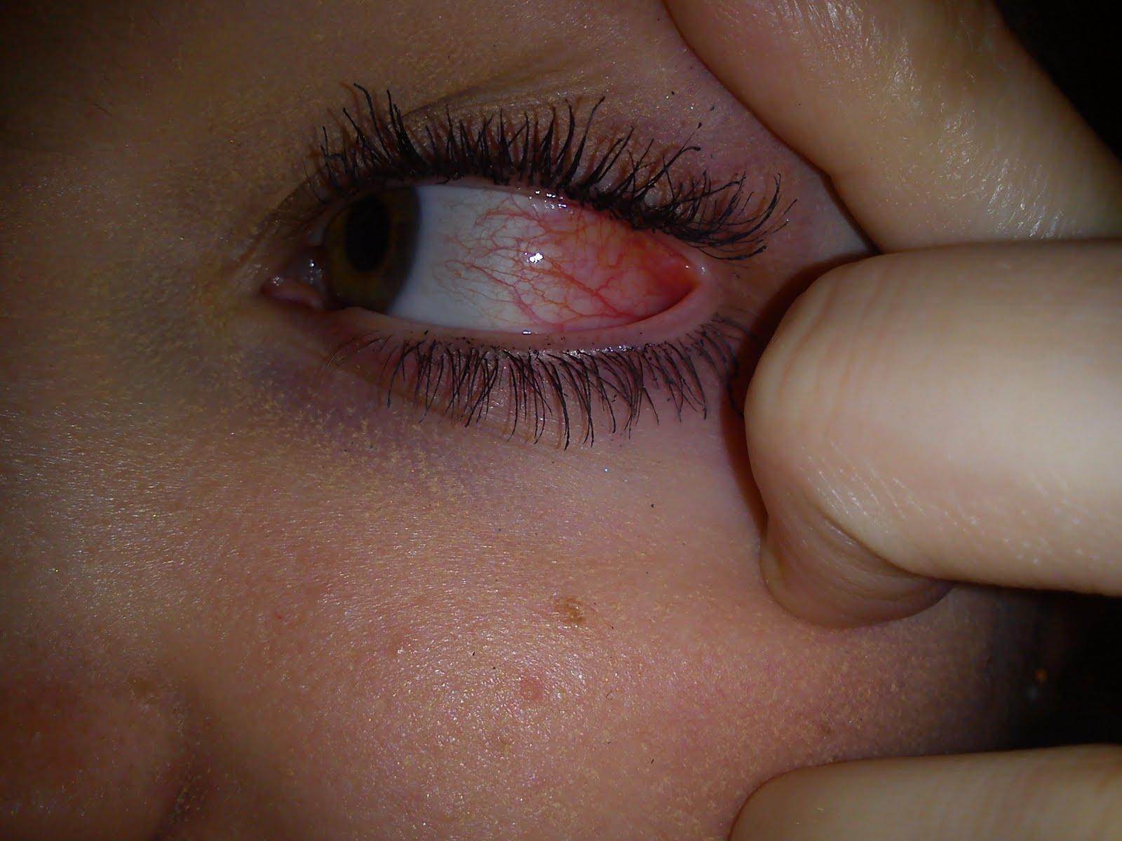 mitt öga rinner och svider