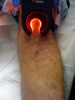 Vein-Light-Technology-IV-Access