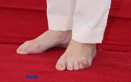 Emma Supple's - Everything Feet: Sarah Brown 5th Toe