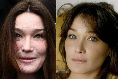 Carla Bruni plastic surgery before and after? (image hosted by plasticsurgerycelebrity.com)