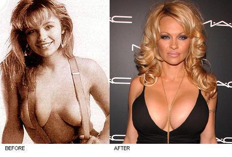 Size dd breast augmentation