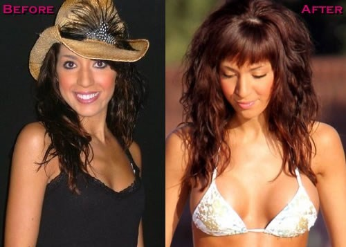 Farrah abraham breast implants
