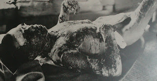 hiroshima atomic nuclear bomb body burned war crime