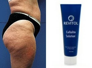 Treatment For Cellulite Home