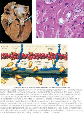 Cardiology Database: Pathology of cardiomyopathy