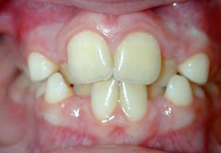Innovadent Clinica Odontologica Integral Qué Origina Los Dientes