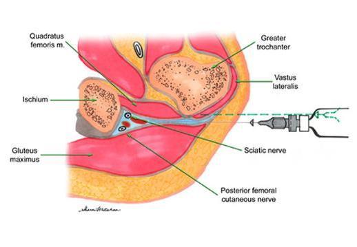 李文吉醫師 骨科專欄: 梨狀肌癥候群(Pyriformis Syndrome) ---- 常被錯當椎間盤凸出 開了刀!