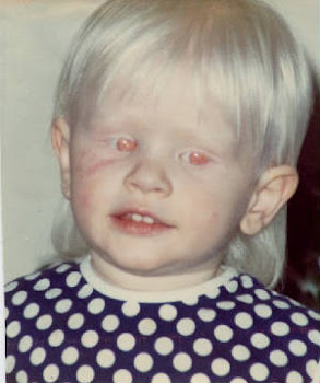 EgyptSearch Forums: If Whites are Albinos, how can there ...