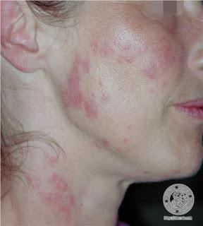 doenças pelvicas femininas