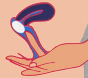 Resultado de imagen de óvulos vaginales