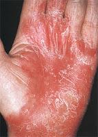 Псориаз на ладонях Причины симптомы и лечения