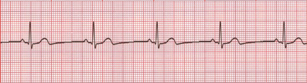 Electrocardiogram (ECG...