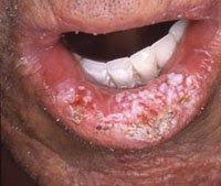 cancer bucal labio