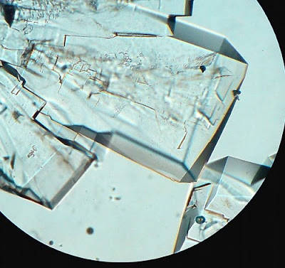 sugar crystals. Magnification -100 Times