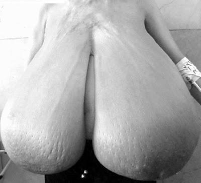 gigantomastia porn