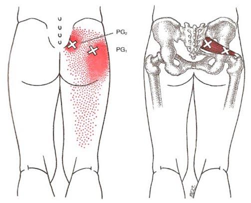 Localización del piriforme y sus puntos gatillo