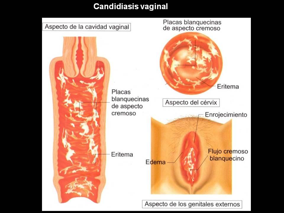 ¿Qué aspecto tiene la secreción de infección vaginal por hongos?