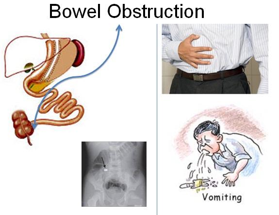 fecal impaction diagram digestive diseases | science department @ st. george's college