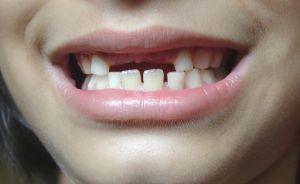 Image: Missing teeth, by Zeeshan Qureshi on FreeImages