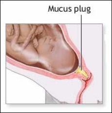 The Birth Teacher: Mucous Plug: Not for the faint of heart