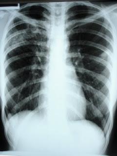 deteriorarea radiografiei articulației încheieturii Dureri pline de durere în articulația cotului