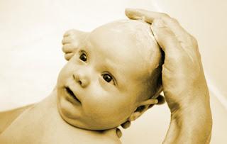 gangguan kulit kerak kepala bayi