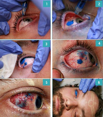 Eyed tattoo (scleral)