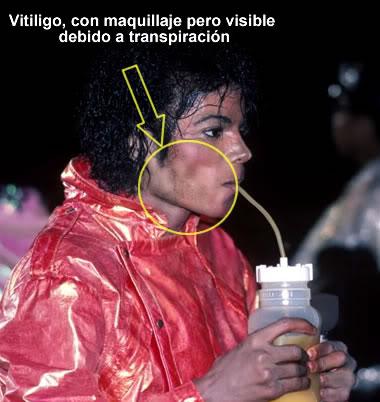 michael jackson skin disease vitiligo car interior design