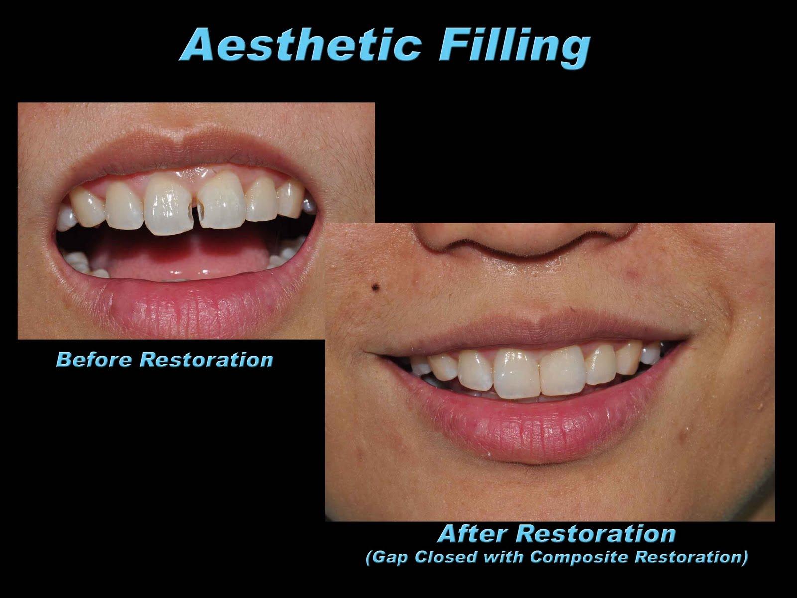 dental filling front teeth - photo #20