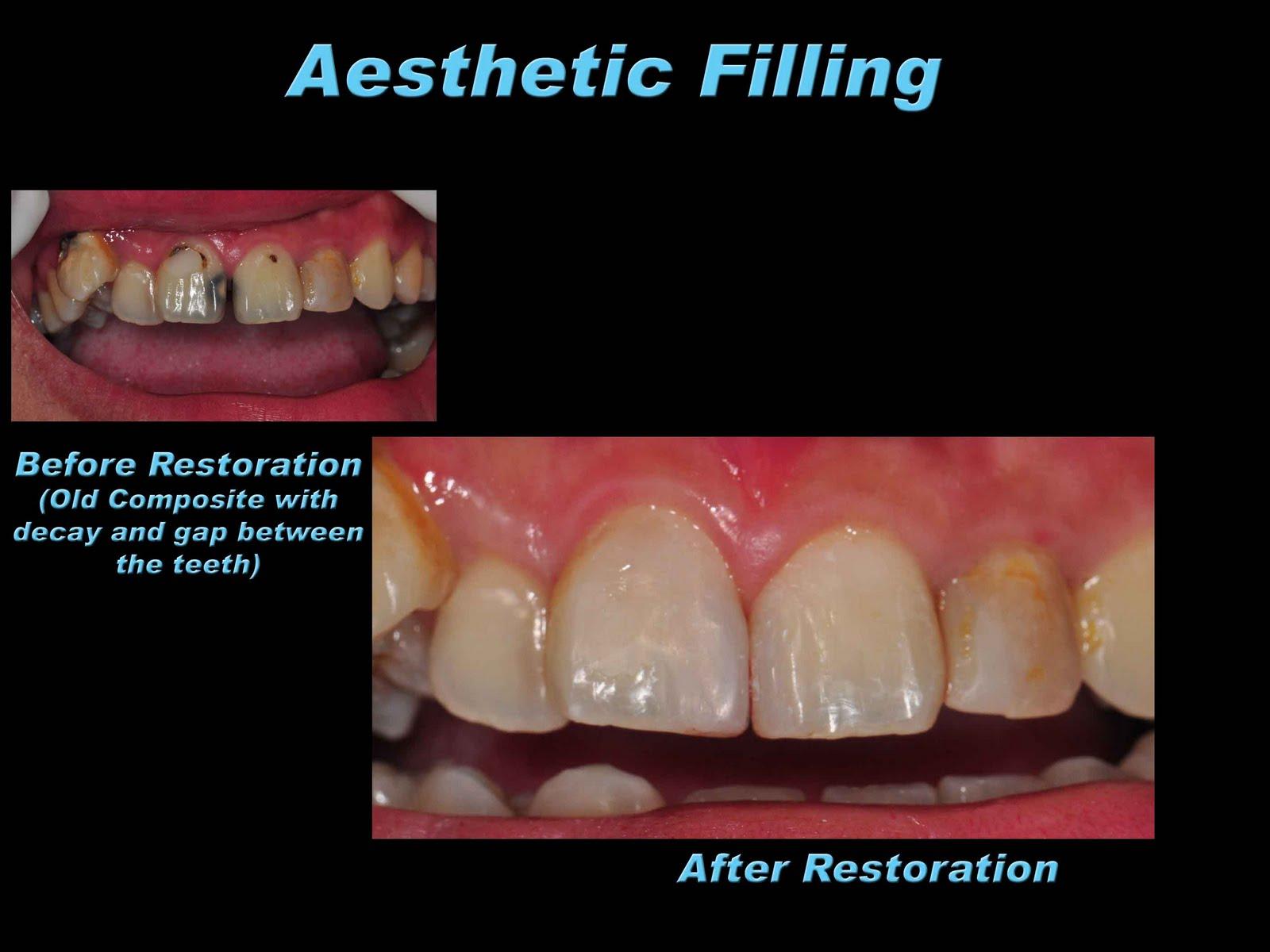 dental filling front teeth - photo #17