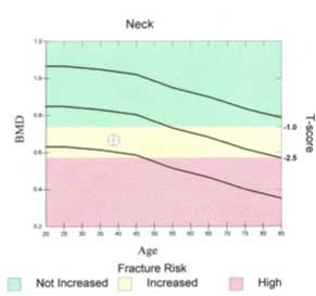 Graph showing green for good bone density, pink for osteoporosis, and yellow in the middle for osteopenia