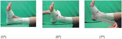 c2f31895f4eed Terapia do Movimento  Bandagens Funcionais em Fisioterapia
