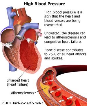 relationship between dietary salt high blood pressure and chd