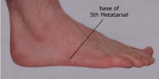 Pain On Outer Side Of Foot