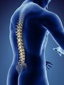 Lumbago - Acute lower back pain images definition diagnosis treatment orthotic