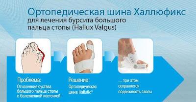 Как избавиться от косточки на ноге у большого пальца