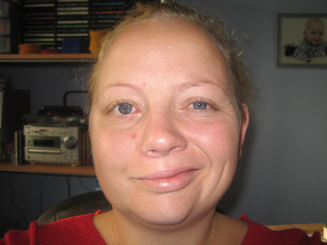 30 year old woman with bells palsy for 3 months