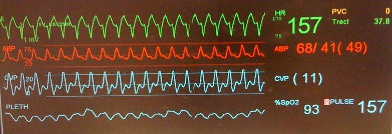 Pedi cardiology: ICU: CVP trace - Tall v wave in 2 different scenarios