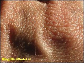 Un zoom sur une peau humaine épaisse de teint moyen.
