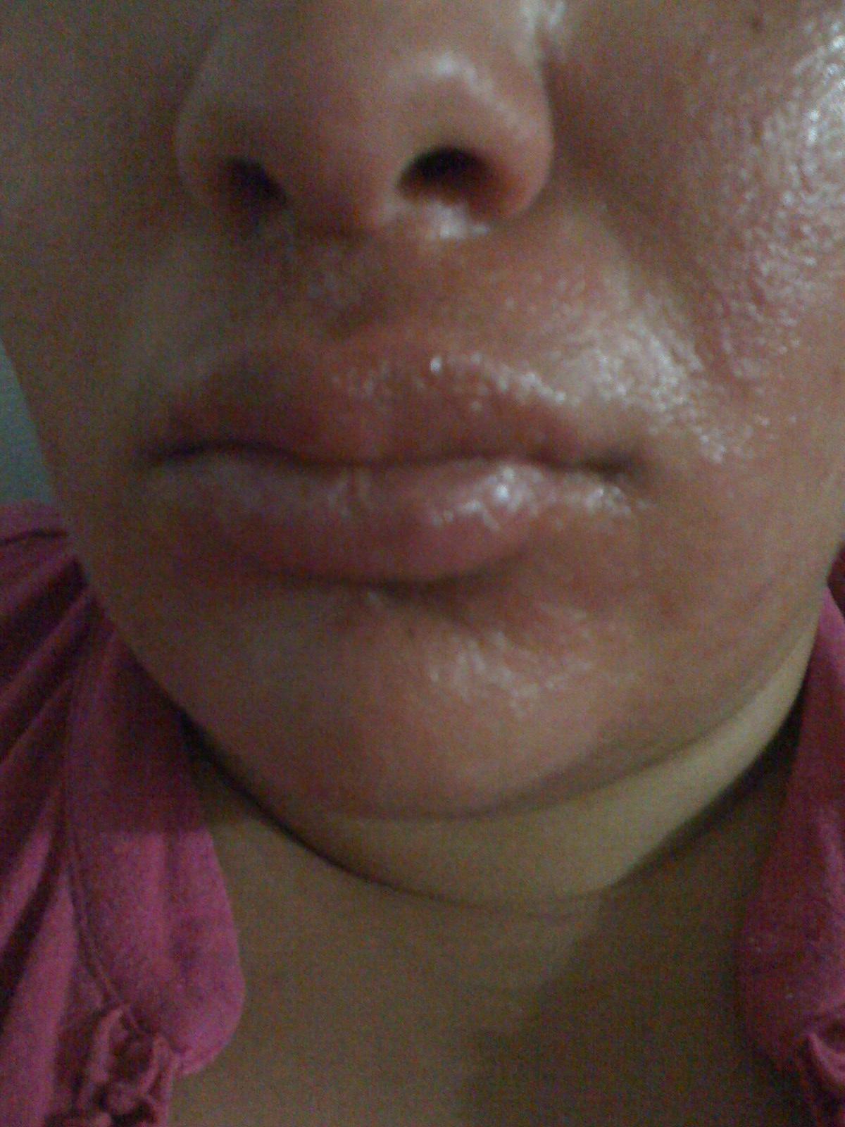 Allergic Reaction Face Cream