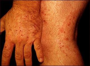 complicaciones de la infección micótica de la piel