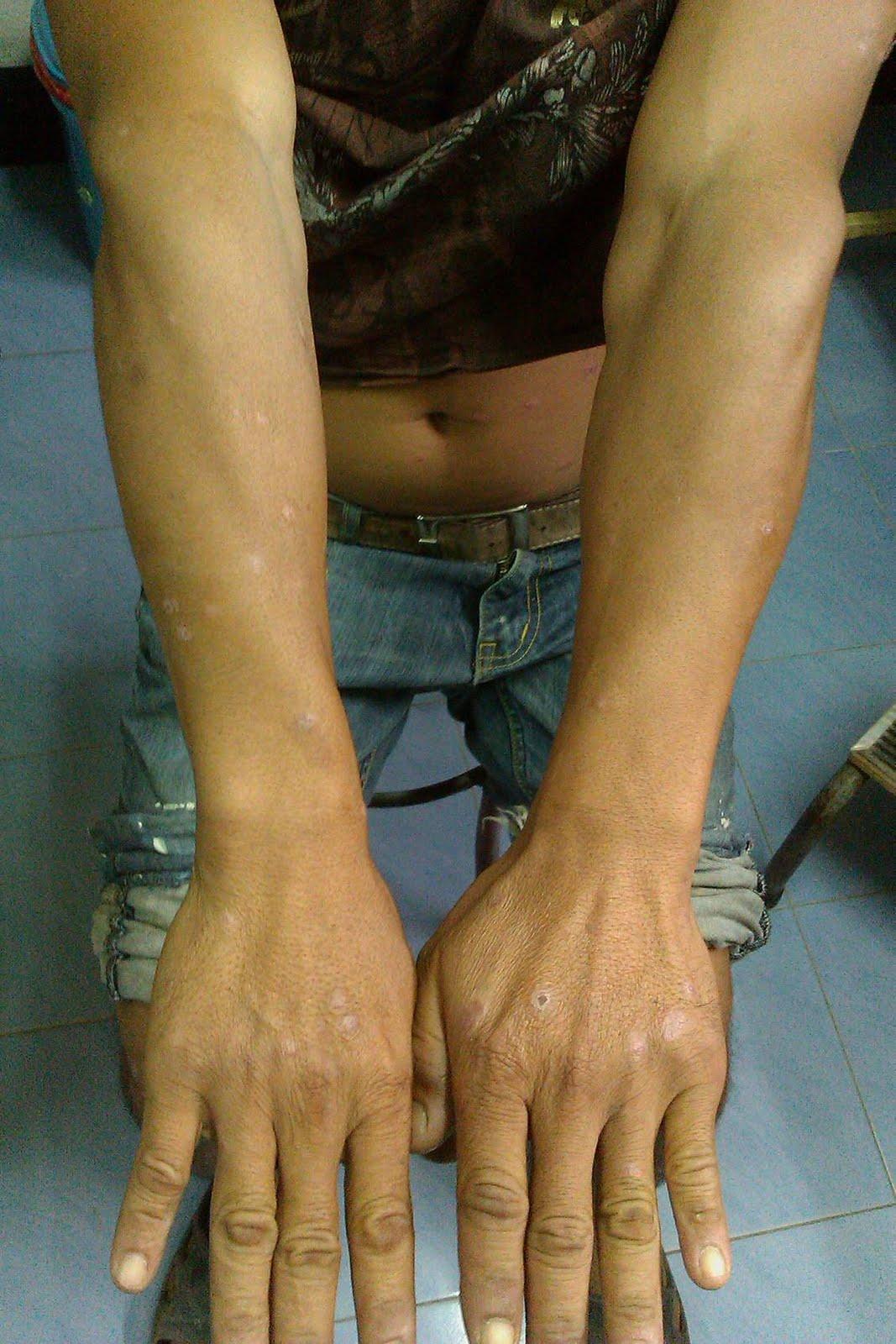 Gyertyák a prosztatitis súlyosbításakor
