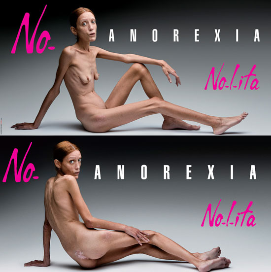 [anorexia.jpg]
