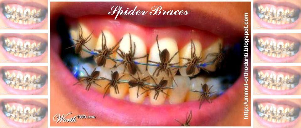 O R T H O D O N T I Kawat Gigi Laba Laba Spider Braces