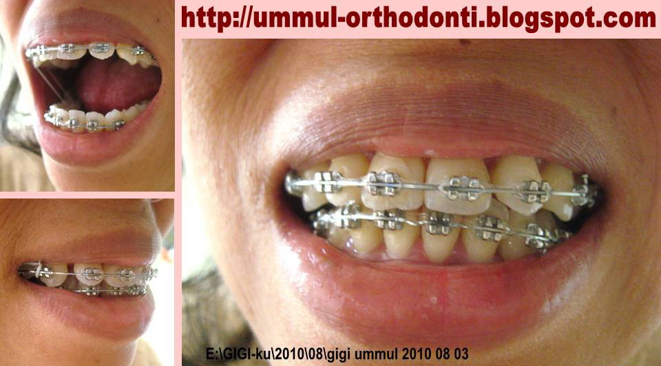 O R T H O D O N T I Kontrol Kawat Gigi Orthodontic