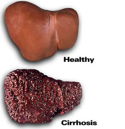 The gallery for --> Healthy And Unhealthy Liver