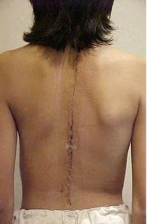 En izquierdo las partes de la espalda son el dolor que este tal
