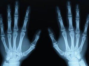Manosvistas a través de rayos x