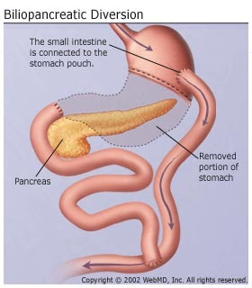 Gastric Problem Food To Eat