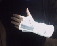 Sprained Wrist